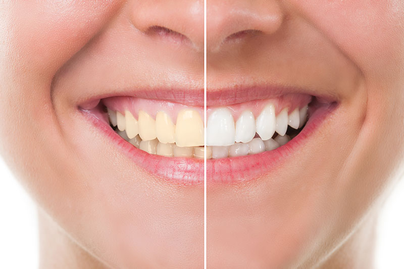 Teeth Whitening - Benjamin Le DMD, Wilmington Dentist